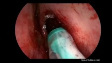 Placement of Steroid-Eluting Stent after Sinus Surgery